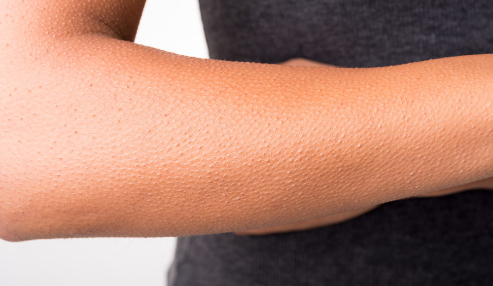 Do Goosebumps Send a Chill Down the Spine of the Creation Model?