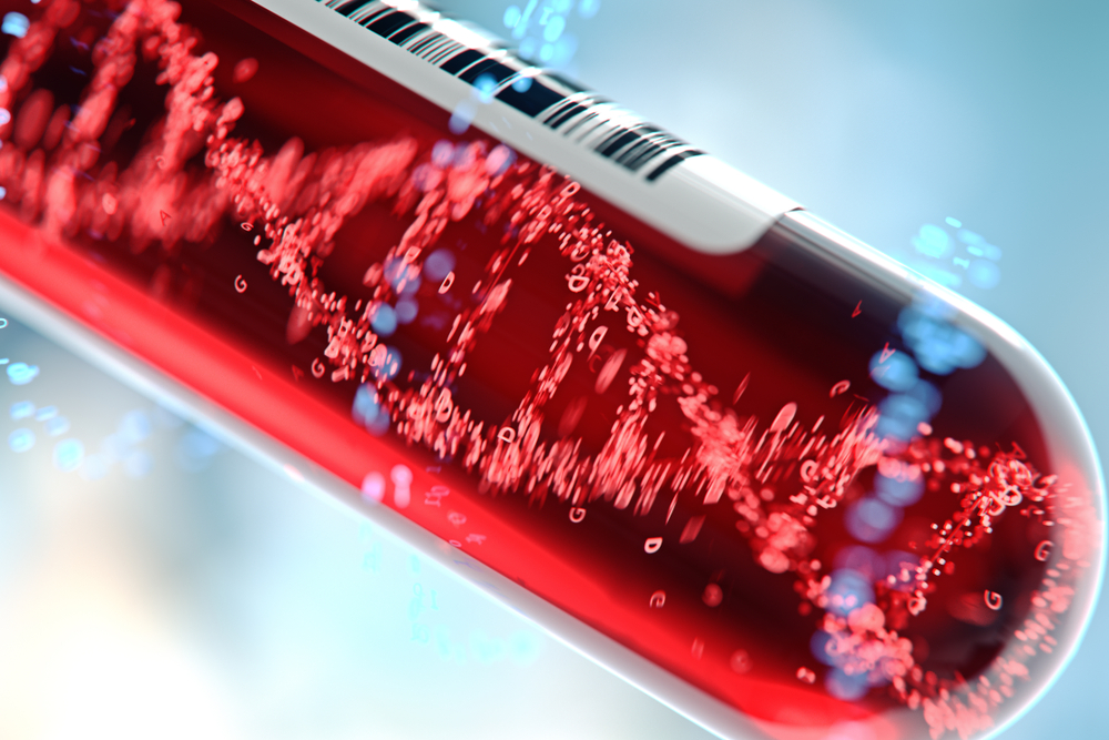 Pseudogene Discovery Pains Evolutionary Paradigm